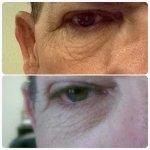 Eliminowanie tkanki tłuszczowej z brzucha i zabiegi na pomarańczową skórkę i ujędrnianie twarzy