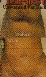 Liposukcja – atrakcyjny zabieg plastyczny dla naszego ciała